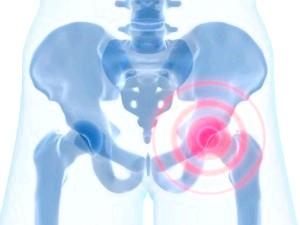 Симптоми бурситу тазостегнового суглобу