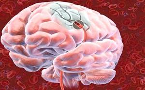 Профілактичні заходь Запобігання інсульту