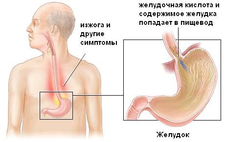 Ерозивний рефлюкс езофагіт: причини і наслідки виникнення патології