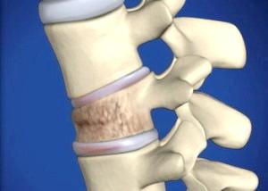 Симптоми і лікування перелому хребта у дитини