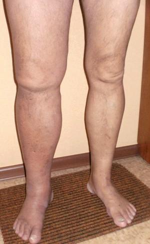 Тромбофлебіт Глибока вен: захворювання, что требует Негайно лікування