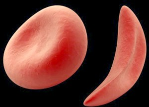 У чому Небезпека серповідноклітінної анемії?