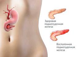 Запалення паренхіми підшлункової залози або панкреатит