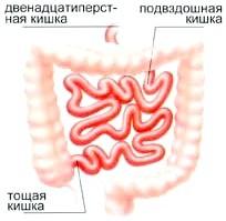 Запалення тонкого кишечника, симптоми і лікування захворювання