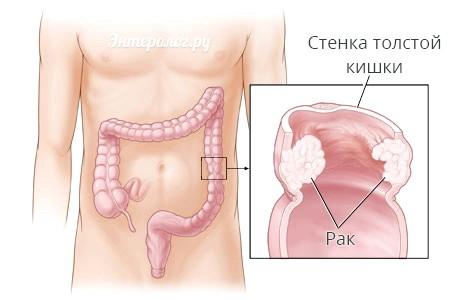 Злоякісні пухлини в кишечнику