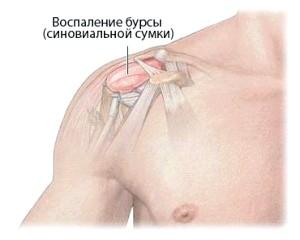 Бурсит плеча