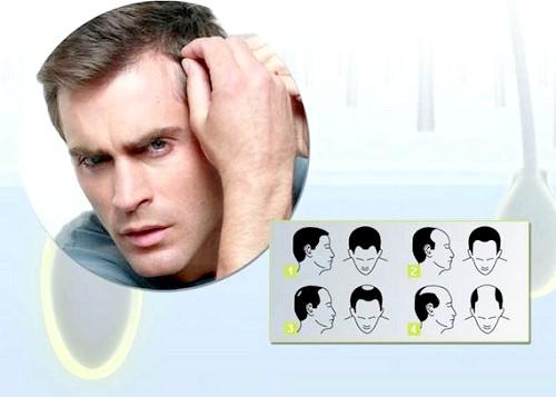 Що потрібно робити, якщо жахливо випадає волосся