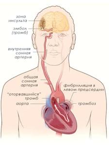 Тромб в серце может віклікаті інсульт