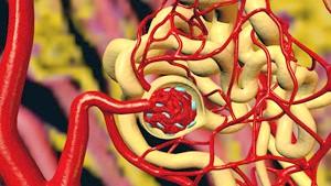 Що таке ніркова гіпертонія?