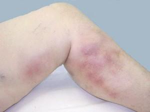 Що таке поверхнево тромбофлебіт ніжніх кінцівок, и як его лікуваті?