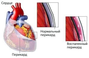 Діагностика та лікування перикардиту серця