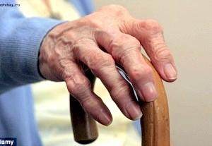 Діагностика ревматоїдного артриту