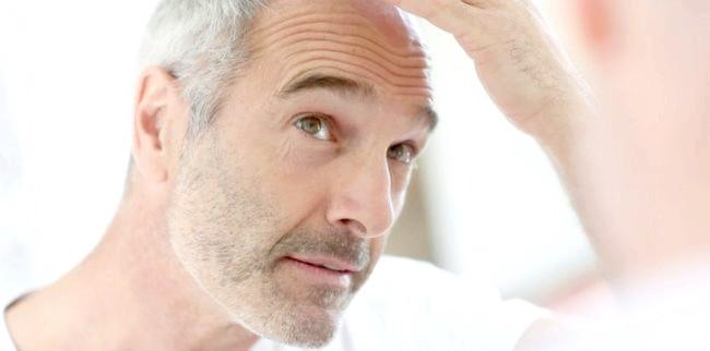 Якщо волосся випадає клаптями, що робити і як вирішити проблему?