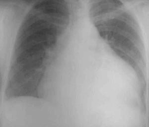 Рентген грудної Клітки