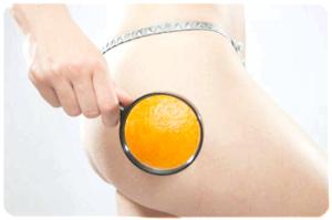 Позбавляємося від апельсинової скориночки і зберігаємо жіночу красу!