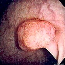 Етіологія і способи лікування аденоматозного поліпа шлунка