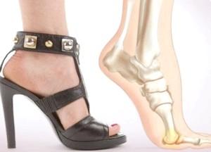 Як лікуваті шишку на великому пальці ноги