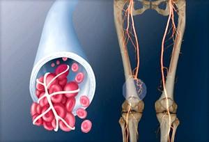 Як лікуваті тромбоз Глибока вен ніжніх кінцівок?