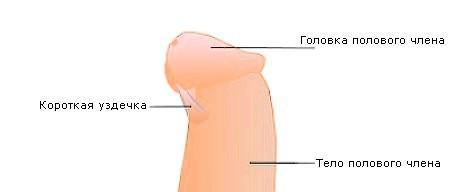 Як лікується тріщина на вуздечці статевого члена?