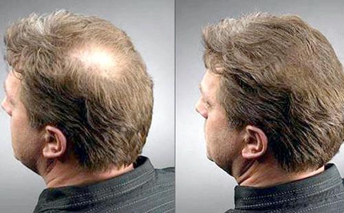 Як здійснити відновлення волосся: рекомендації чоловікам
