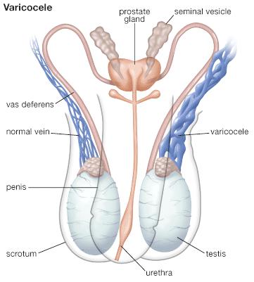 Як виявляється варикоцеле на різних етапах і особливості діагностики