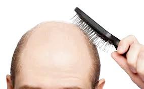 Боротьба з випаданням волосся у чоловіків
