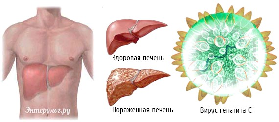 Яких хвороб схильна печінку людини