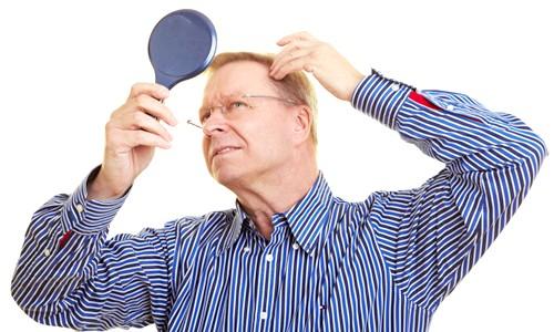 Чому випадає волосся у чоловіків: що робити для запобігання облисіння