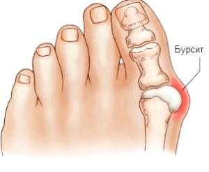 Лікування бурситу стопи