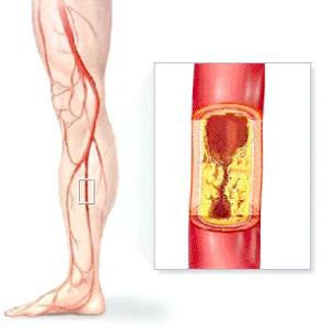 Лікування облітеруючого атеросклерозу ніжніх кінцівок?