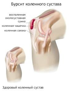 Лікуємо бурсит колінного суглобу