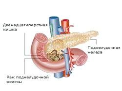 Новоутворення в підшлунковій залозі