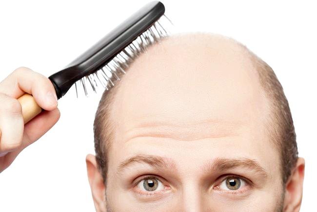 Рясно випадає волосся: які аналізи здати в першу чергу?