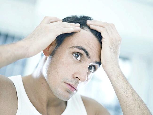 Випадання волосся і способи лікування алопеції в домашніх умовах