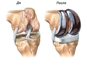 Операція з протезування коліна