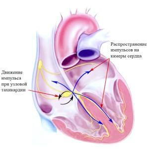 Особливості пароксізмальної надшлуночкової тахікардії