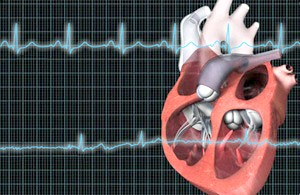 Пароксизмальна міготліва аритмія - несподіваній Серцевий збій