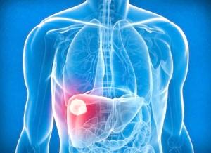 Первинний рак печінки: що потрібно знати?