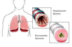 Перші ознаки бронхіальної астми: як не упустити момент