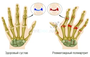 Лікування ревматоїдного поліартріту
