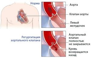 Наслідки и лікування аортальнійнедостатності