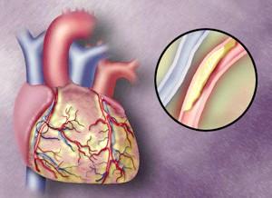 Атеросклероз - причина по Якій розвівається стенокардія