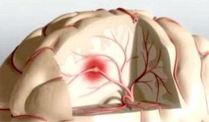 Постінсультні головні болі