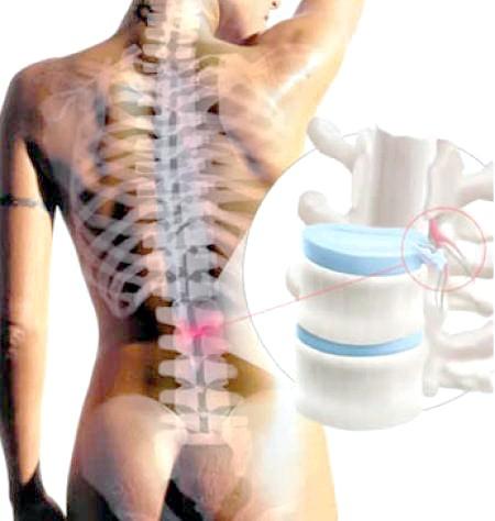 Хребетних грижа Симптоми и лікування