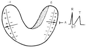 Субендокардіальніх ішемія під електродом