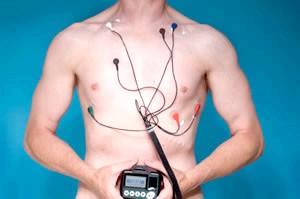 Для діагностики проводять холтерівське моніторування