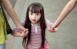 Причини і ознаки синдрому дауна