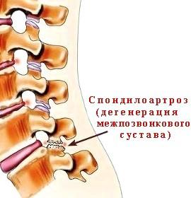 Принципи лікування спондилоартроз шії