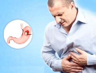 Ознаки та симптоми виразки шлунка