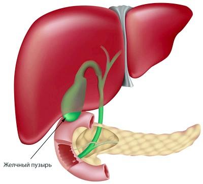Симптоми хронічного холециститу і принципи лікування хвороби